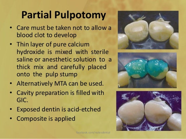 pulp therapy in primary teeth pdf