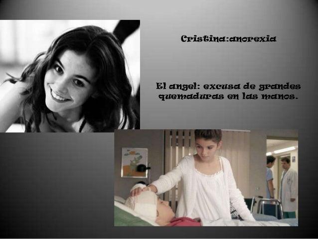 Cristina:anorexiaEl angel: excusa de grandesquemaduras en las manos.