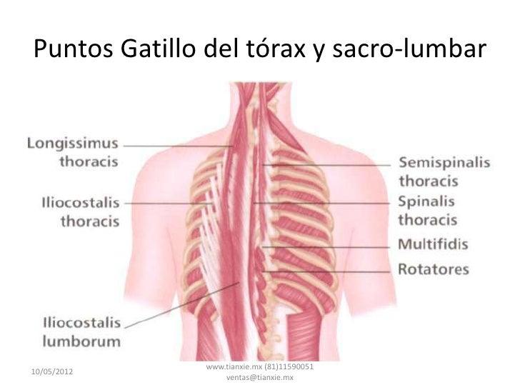 Puntos Gatillo del tórax y sacro-lumbar              www.tianxie.mx (81)1159005110/05/2012                  ventas@tianxie...