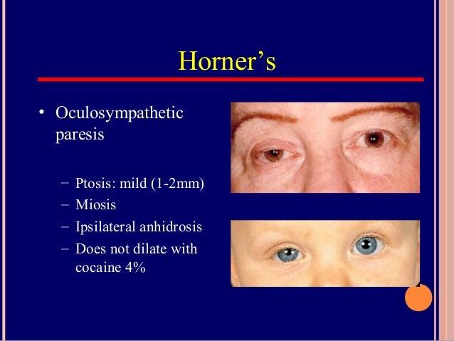 PupilDilated Pupils Drugs Miosis