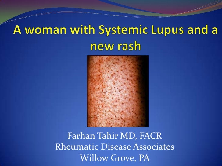 Pupura In A Patient With Lupus