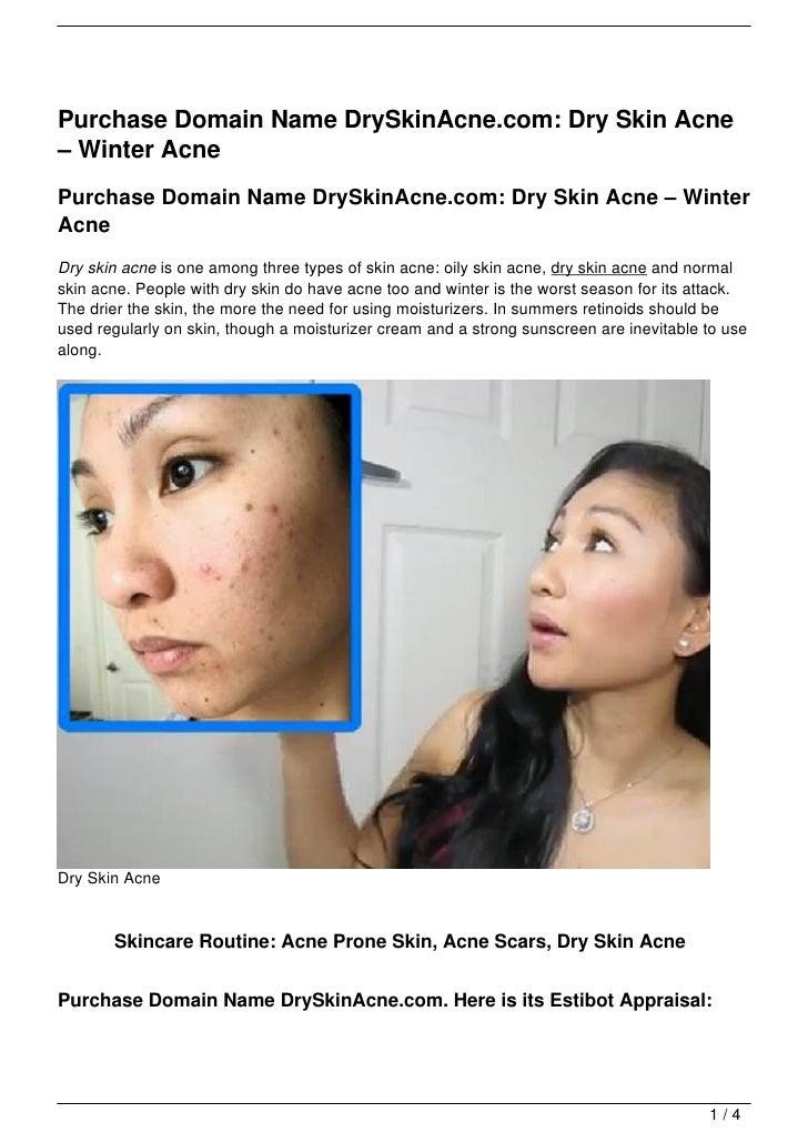 Purchase Domain Name DrySkinAcne.com: Dry Skin Acne– Winter AcnePurchase Domain Name DrySkinAcne.com: Dry Skin Acne – Wint...