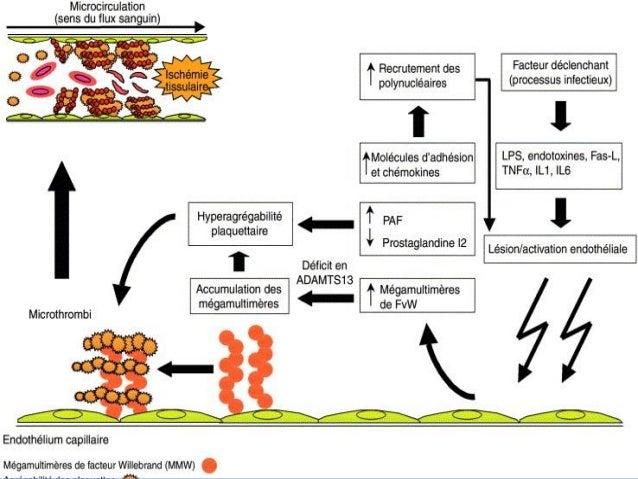 PTT congénital  Rare  Transmission auto récessive (K 9)  Mutations du gène d'ADAMTS 13  Abscence protéolyse du FW,soit...