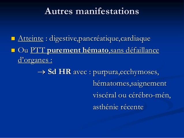 Paraclinique (2)  iono sguin et urinaire  Recherche d'un processus infectieux  Rech d'une IgG anti-ADAMTS 13++  Etude ...