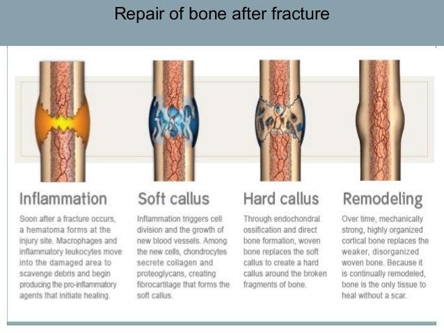 bone-physiology-56-638.jpg?cb=1373284789