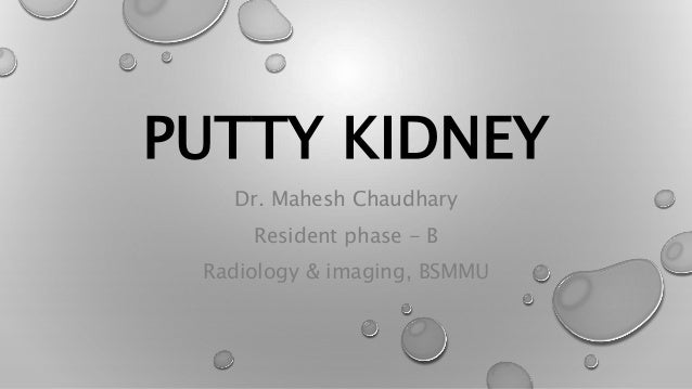 PUTTY KIDNEY Dr. Mahesh Chaudhary Resident phase - B Radiology & imaging, BSMMU