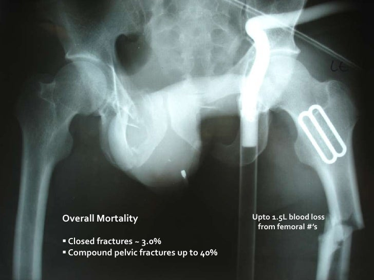 Upto 1.5L blood loss from femoral #'s<br />Overall Mortality<br /><ul><li> Closed fractures ~ 3.0%