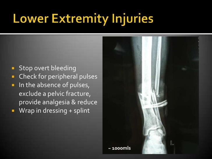 Lower Extremity Injuries<br />Stop overt bleeding<br />Check for peripheral pulses<br />In the absence of pulses, exclude ...