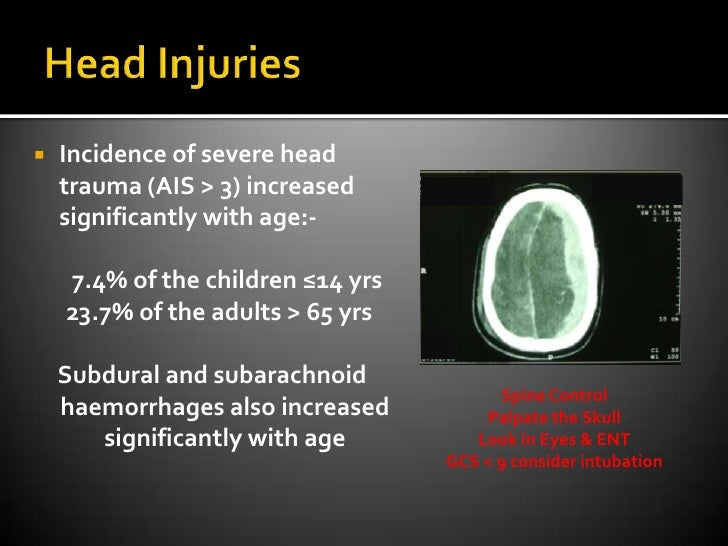 Head Injuries<br />Incidence of severe head trauma (AIS &gt; 3) increased significantly with age:-<br />       7.4% of the...