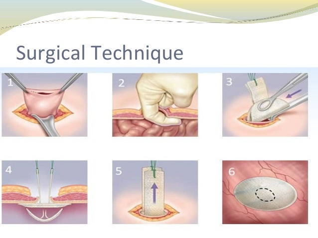 Umbilical Hernia Surgery Diagram - All Kind Of Wiring Diagrams •