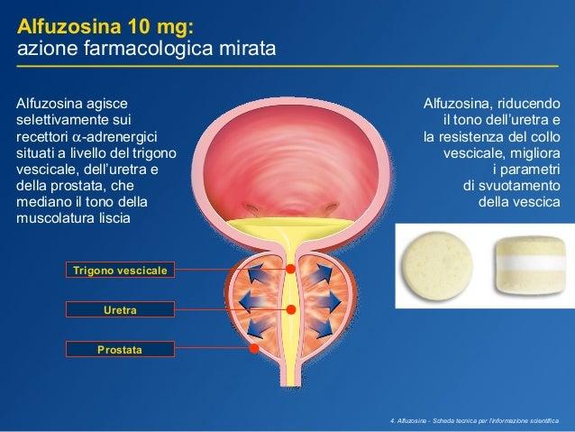 Blocantii alfa 1 adrenergici prostata