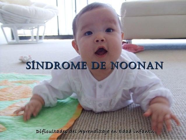SINDROME DE NOONAN    SÍNDROME DE NOONAN        Dificultades del Aprendizaje en Edad infantilDIFICULTADES DEL APRENDIZAJE ...