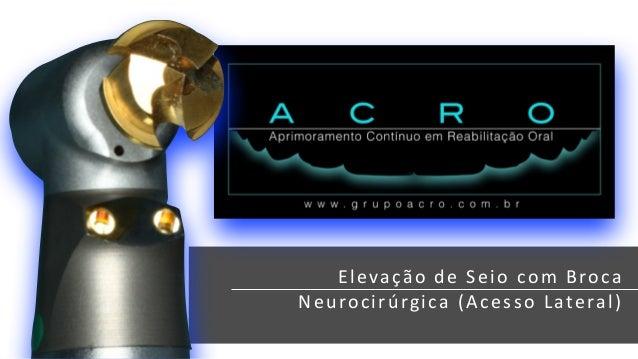 Elevação  de  Sei o  com  Broca  Neuroc irúrg ica  (Acesso  Lateral )