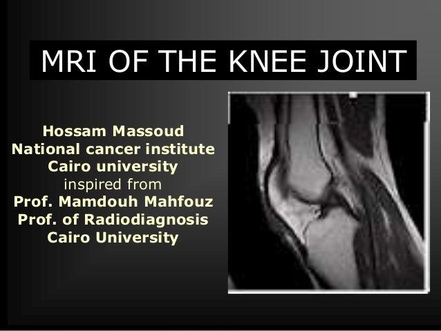 MRI of Knee joint-- hossam massoud