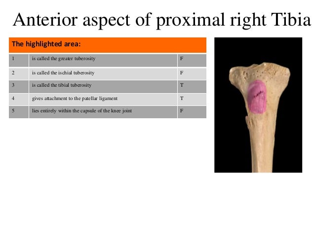 1 is called the greater tuberosity F 2 is called the ischial tuberosity F 3 is called the tibial tuberosity T 4 gives atta...