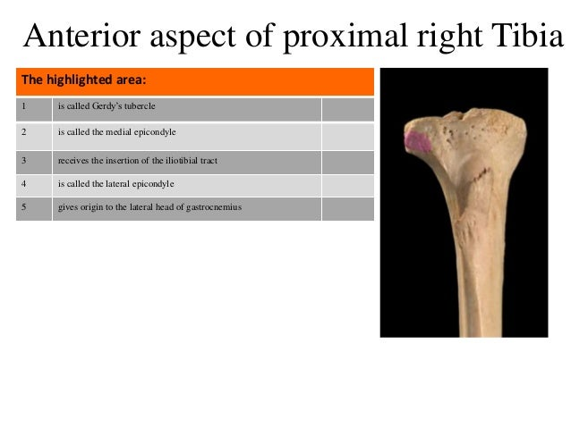 1 is called Gerdy's tubercle 2 is called the medial epicondyle 3 receives the insertion of the iliotibial tract 4 is calle...