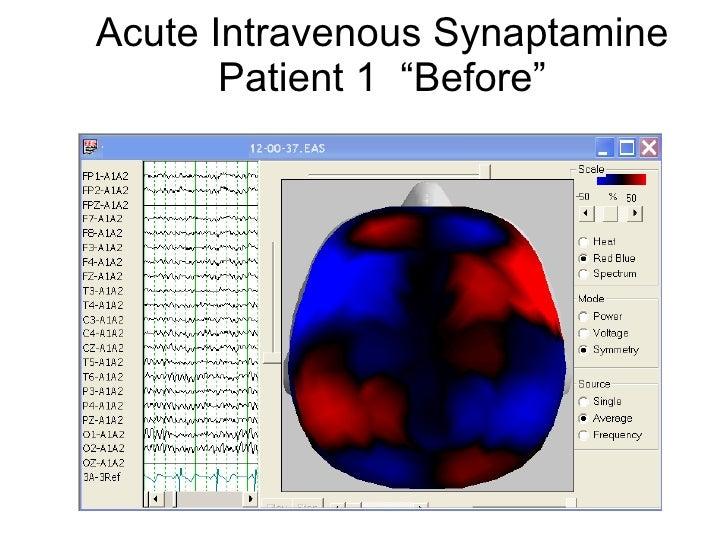 "Acute Intravenous Synaptamine Patient 1  ""Before"""