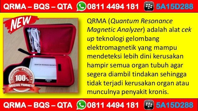 QRMA (Quantum Resonance Magnetic Analyzer) adalah alat cek up teknologi gelombang elektromagnetik yang mampu mendeteksi le...