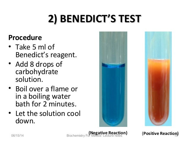 benedict s test To detect the presence of sugar in urine benedict's test materials required: test tube, test tube holder, urine sample, measuring cylinders, benedict's solution and burner.