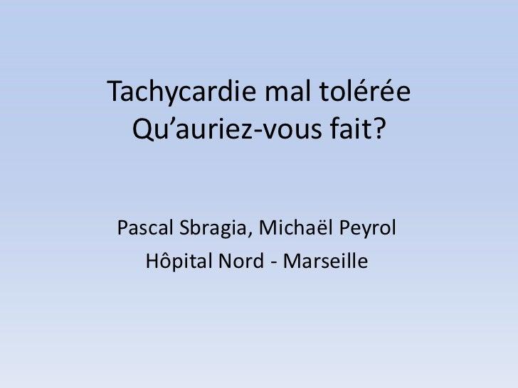 Tachycardie mal tolérée  Qu'auriez-vous fait?Pascal Sbragia, Michaël Peyrol   Hôpital Nord - Marseille