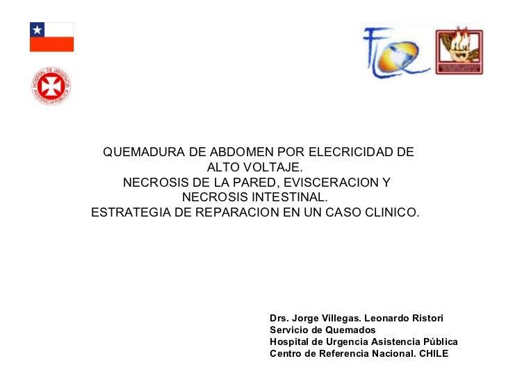 QUEMADURA DE ABDOMEN POR ELECRICIDAD DE ALTO VOLTAJE.  NECROSIS DE LA PARED, EVISCERACION Y NECROSIS INTESTINAL.  ESTRATEG...