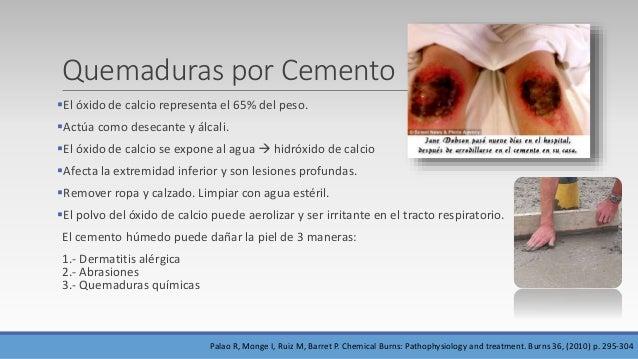 Ácido Clorhídrico/Ácido muriático  Menos frecuente.  En contacto con la piel, desnaturaliza las proteínas en sales de cl...