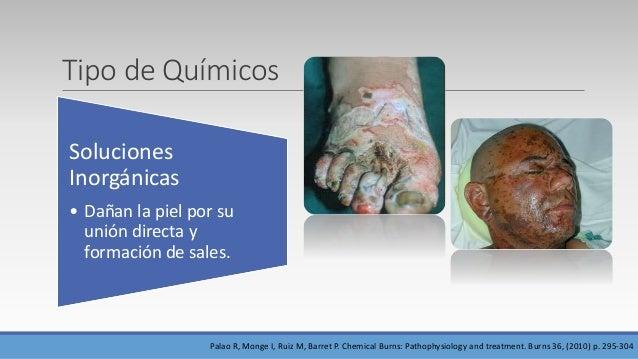 Tipo de Químicos Soluciones Inorgánicas • Dañan la piel por su unión directa y formación de sales. Palao R, Monge I, Ruiz ...