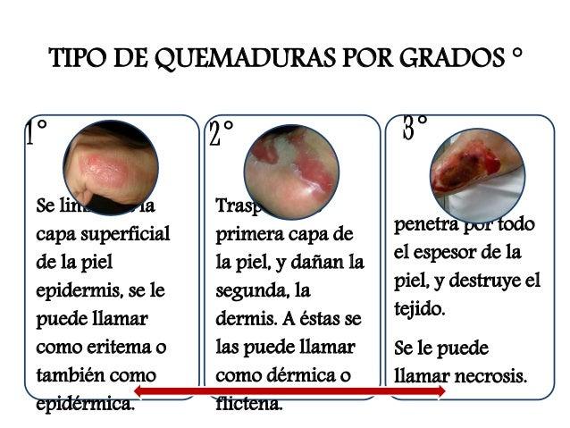 grados de quemaduras en la piel quemaduras