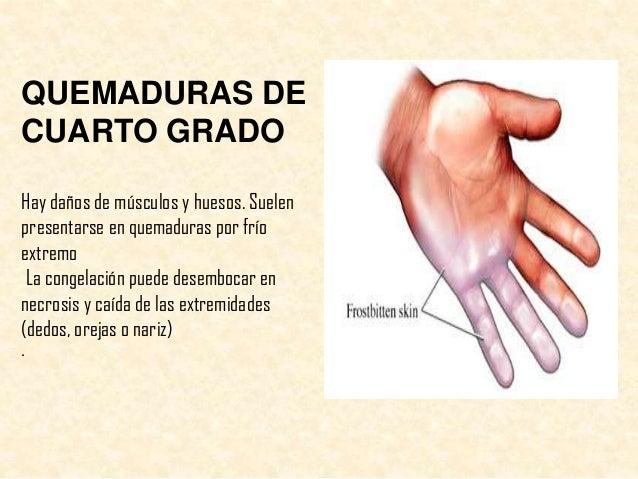 Quemadura Cuarto Grado | Quemaduras Clasificacion Y Cuidados De Enfermeria