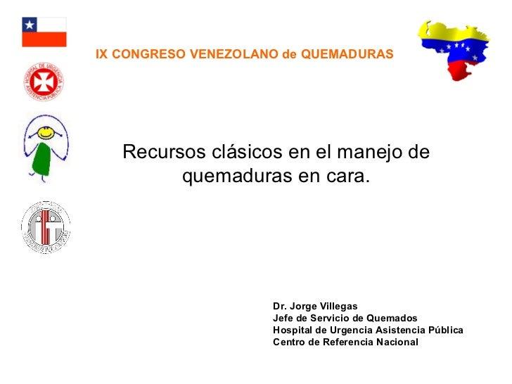 Quemaduras en la cara. recursos clásicos. venezuela.