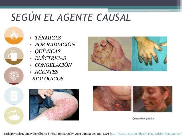 SEGÚN EL AGENTE CAUSAL • TÉRMICAS • POR RADIACIÓN • QUÍMICAS • ELÉCTRICAS • CONGELACIÓN • AGENTES BIOLÓGICOS Pathophysiolo...