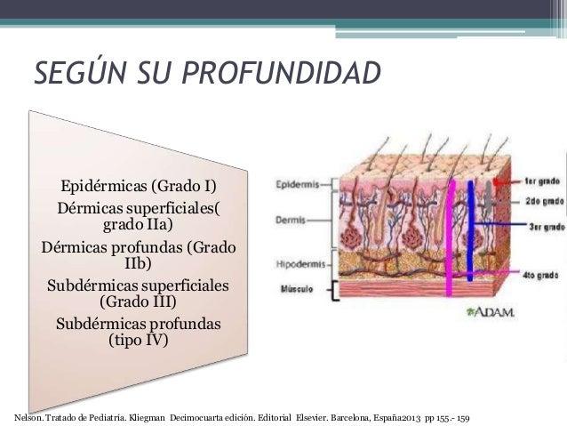 SEGÚN SU PROFUNDIDAD Epidérmicas (Grado I) Dérmicas superficiales( grado IIa) Dérmicas profundas (Grado IIb) Subdérmicas s...