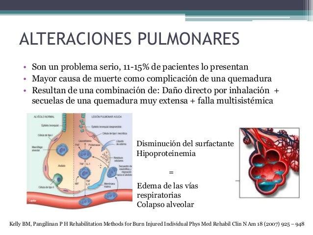ALTERACIONES PULMONARES • Son un problema serio, 11-15% de pacientes lo presentan • Mayor causa de muerte como complicació...