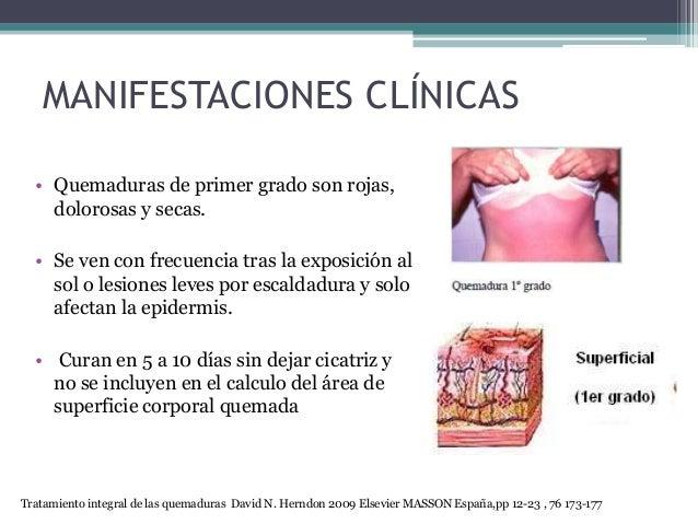 MANIFESTACIONES CLÍNICAS • Quemaduras de primer grado son rojas, dolorosas y secas. • Se ven con frecuencia tras la exposi...