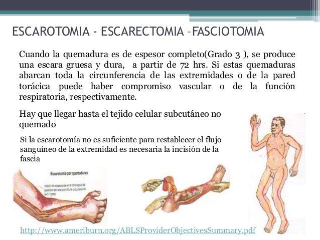 ESCAROTOMIA - ESCARECTOMIA –FASCIOTOMIA Cuando la quemadura es de espesor completo(Grado 3 ), se produce una escara gruesa...