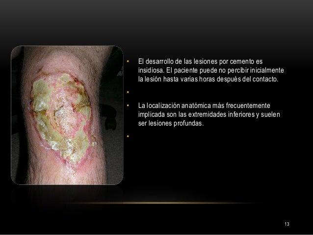 13 • El desarrollo de las lesiones por cemento es insidiosa. El paciente puede no percibir inicialmente la lesión hasta va...