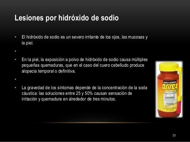 Lesiones por hidróxido de sodio 23 • El hidróxido de sodio es un severo irritante de los ojos, las mucosas y la piel. • • ...