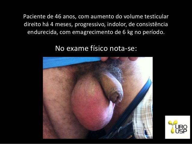 Paciente de 46 anos, com aumento do volume testicular direito há 4 meses, progressivo, indolor, de consistência endurecida...