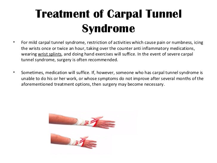 quick facts about carpal tunnel syndrome
