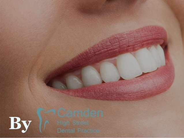Teeth Whitening - Natural Home Remedies