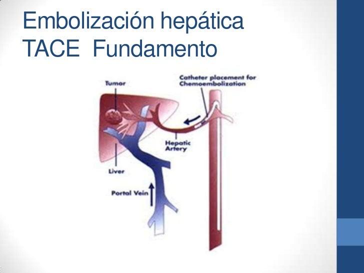 Embolización hepáticaTACE Fundamento
