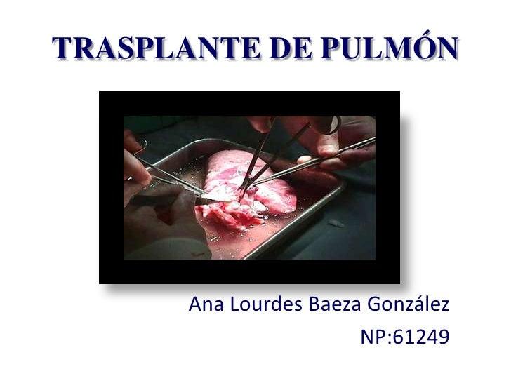 TRASPLANTE DE PULMÓN      Ana Lourdes Baeza González                       NP:61249