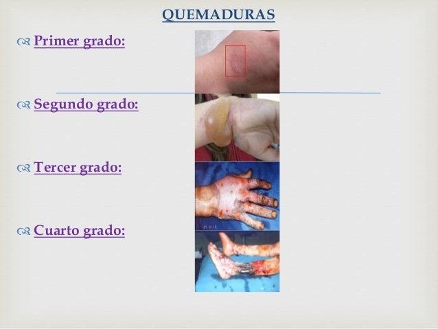 Quirurgico y quemaduras for Cuarto quirurgico