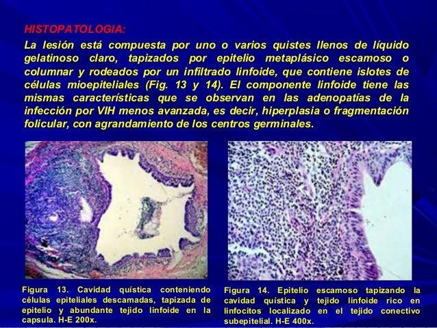 Quiste linfoepitelial benigno de gl ndula par tida en paciente con in - Liquido preseminal vih casos ...