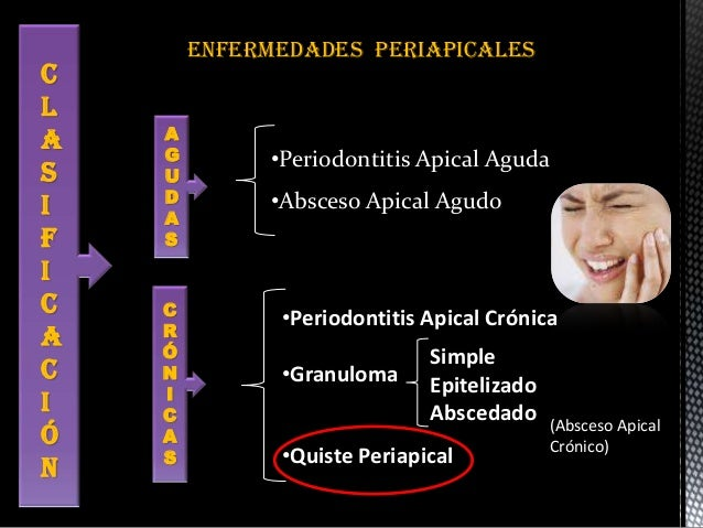 Periodontitis apical cronica pdf