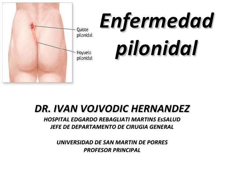 Enfermedad pilonidal DR. IVAN VOJVODIC HERNANDEZ HOSPITAL EDGARDO REBAGLIATI MARTINS EsSALUD JEFE DE DEPARTAMENTO DE CIRUG...