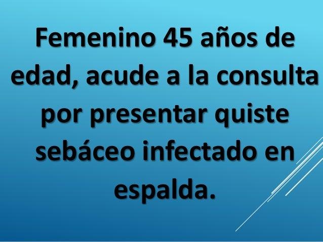 Femenino 45 años de edad, acude a la consulta por presentar quiste sebáceo infectado en espalda.