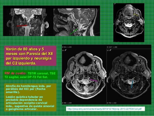 Varón de 80 años y 5Varón de 80 años y 5 meses con Paresia del XIImeses con Paresia del XII par izquierdo y neuralgiapar i...
