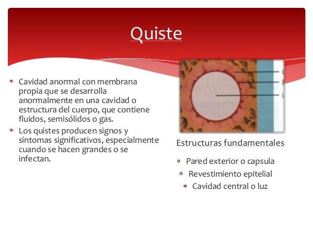 Quistes odontogénicos Slide 2
