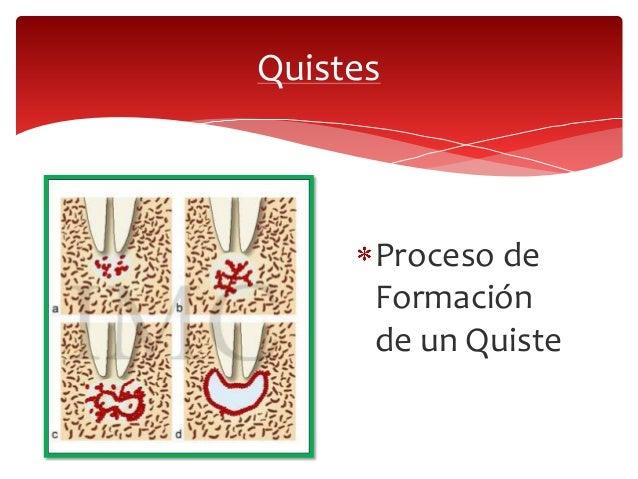 Quistes odontogénicos Slide 3